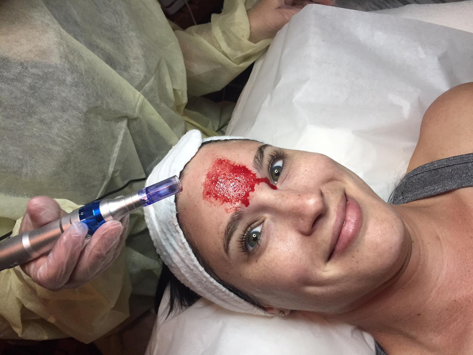 prp-facial-procedure